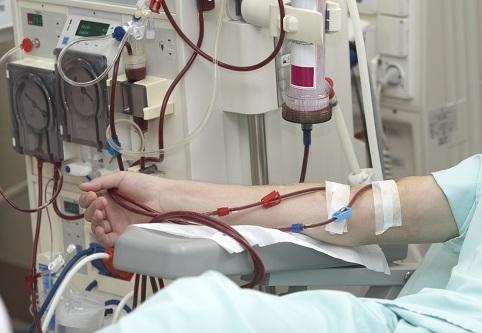 В Запорожье с гемодиализом все сложно