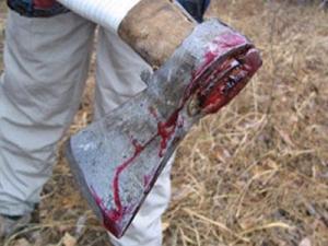 Сотрудник металлоприемника ударил запорожца топором по руке - ФОТО
