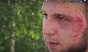 Анатолий Остапенко об избиении: Это предупреждение, чтобы работал «аккуратнее» и не трогал тех, кого не нужно