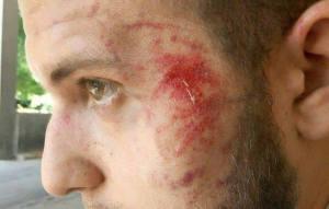 В центре Запорожья неизвестные избили журналиста