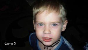 ЧП в запорожском детсаде: мать написала заявление в полицию об избиении ребенка - ФОТО
