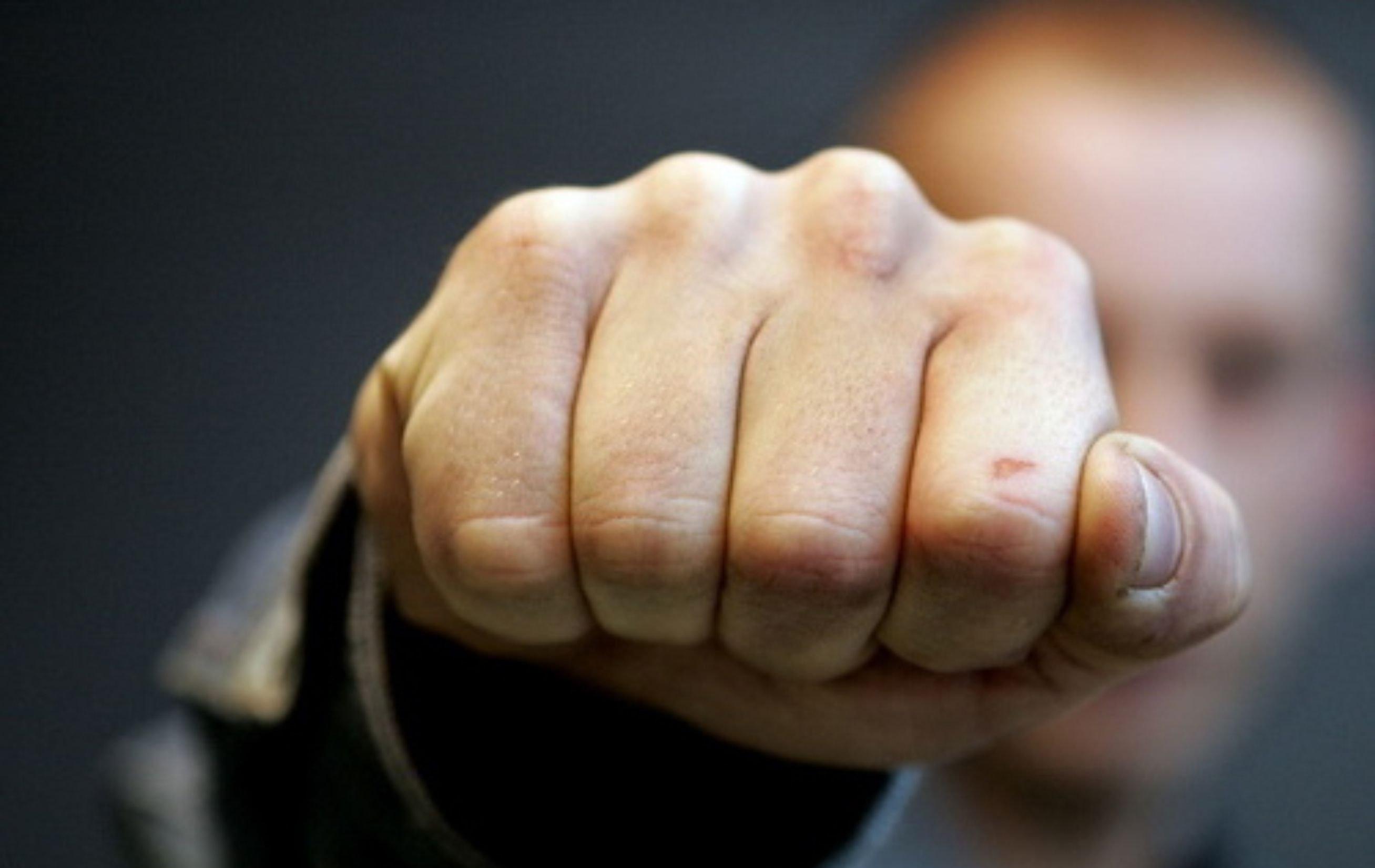 В Запорожье до потери памяти избили мужчину: полиция задержала злоумышленника - ФОТО