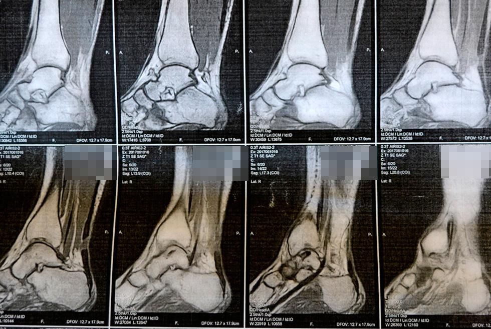 foto-2_vrachi-kliniki-ortopedii-i-sportivnoy-travmyi-vernuli-radost-dvizheniya-molodoy-mame-iz-melitopolya