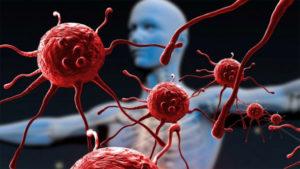 Запорожье на четвертом месте по количеству потраченных средств на борьбу со СПИДом - ИНФОГРАФИКА