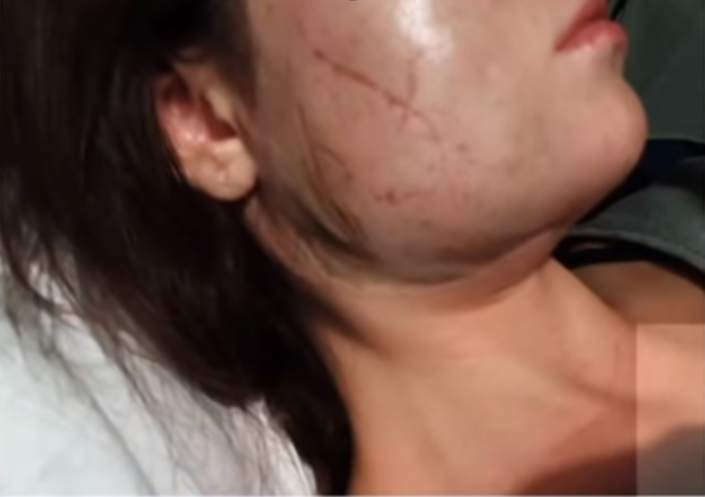 В Запорожье злоумышленник из мести облил девушку серной кислотой - ВИДЕО