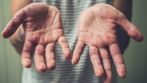 В Запорожье продолжают регистрировать новые случаи опасного вируса