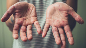 У Запорізькій області йде на спад захворюваність на кір