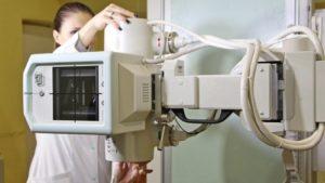 У Запорізькій лікарні встановили новий цифровий рентген-апарат, — ФОТО