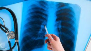 В Запорізькій області від туберкульозу помер школяр, ще один можливо заражений