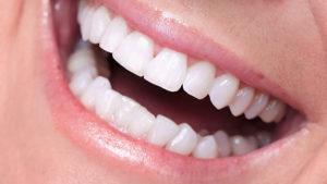 Современные технологии протезирования зубов: виды и методы лечения