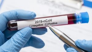 У Запорізькій області вже 45 людей захворіли коронавірусом