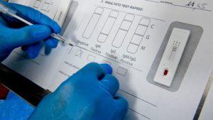 В аптеках Запорожья продают быстрые тесты на коронавирус: цена
