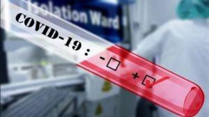 Запорожская область получит от крупного бизнеса большую поставку экспресс-тестов для диагностики коронавируса