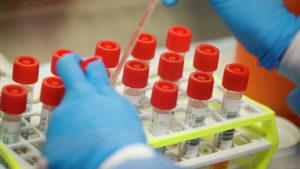 В Запорожской области второй день подряд одинаковое количество новых больных коронавирусом