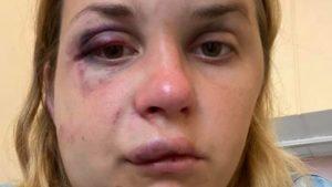 «Укрзалізниця» звільнила співробітників поїзда, в якому тричі судимий житель Запоріжжя побив і ледь не зґвалтував жінку, – ФОТО