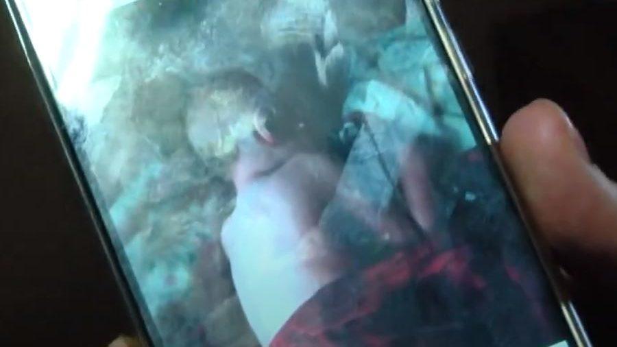 Запорожанка лечила сына с тяжелой болезнью народными методами: ребенок попал в больницу, — ВИДЕО