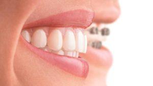 Выравнивание зубов с помощью элайнеров