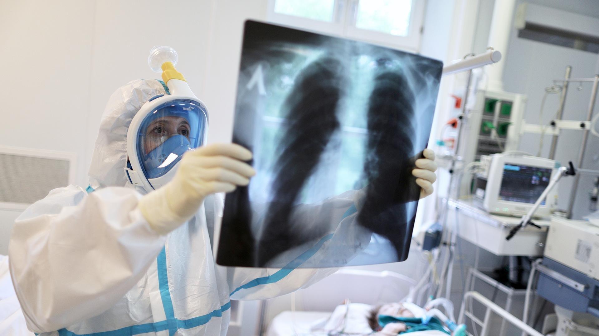 В Запорожской области от COVID-19 умерли еще девять заболевших