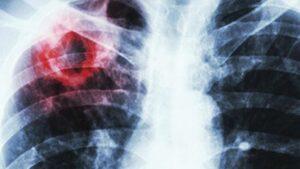 Пандемия коронавируса осложнила борьбу с туберкулёзом
