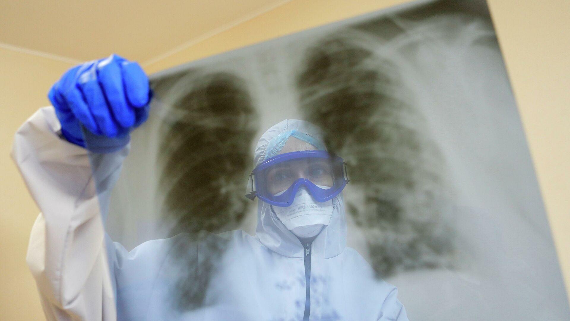 У Запорізькій області від ускладнень COVID-19 померли понад 20 пацієнтів