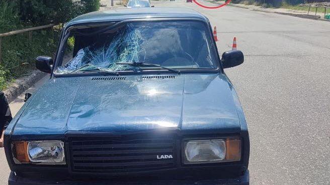 У Запоріжжі легковик збив чоловіка, який перебігав дорогу у забороненому місці, – ФОТО