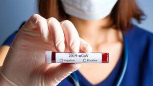 Україна входить в 10-ку лідерів Європи за новими випадками коронавірусу